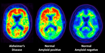 a new PET scan offers hope of more effective early diagnosis of Alzheimer's disease.